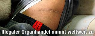 Mann zeigt eine Narbe nach einer Organentnahme