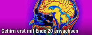 Scan eines menschlichen Gehirns