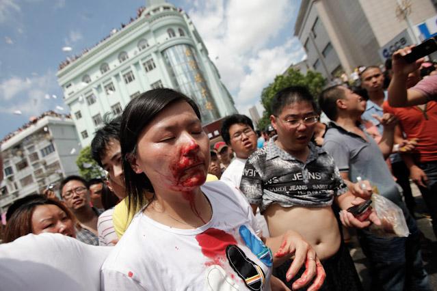 Verletzte Demonstrantin Qidong
