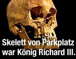 Schädel von König Richard III.