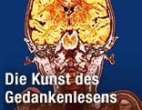 Gehirnscan