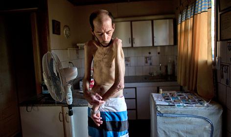 Mann mit gesundheitlichen Schäden durch Pestizide