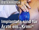 Arzt passt ein Brustimplantat an