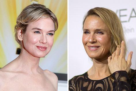 Vorher-Nachher-Vergleich zeigt Schauspielerin Renee Zellweger