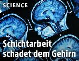 Magnetresonanztomographie eines menschlichen Gehirns
