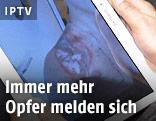 Opfer der Übergriffe in Köln