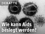 Elektronenmikroskopische Aufnahme mehrerer Aidsviren