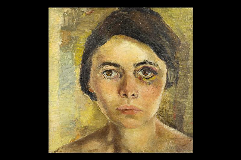 Edith Kramer: The Black Eye