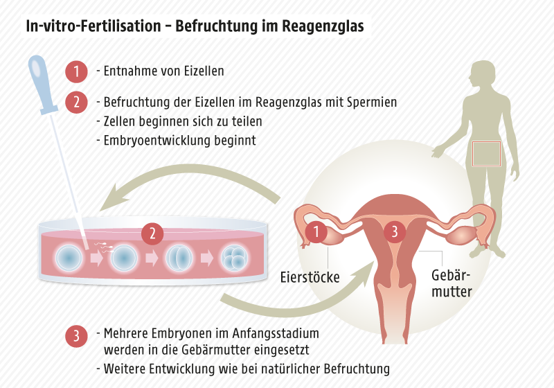 Grafik zeigt In-Vitro-Fertilisation (Befruchtung im Reagenzglas)