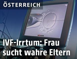 IVF-Abbildung auf einem Monitor