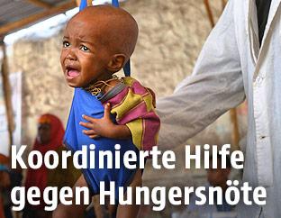 Ein weinendes somalisches Baby wird von einem Arzt gewogen