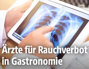 Ein Arzt blickt auf ein Röntgenbild der Lunge