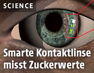 Illustration zeigt Smarte Kontaktlinse